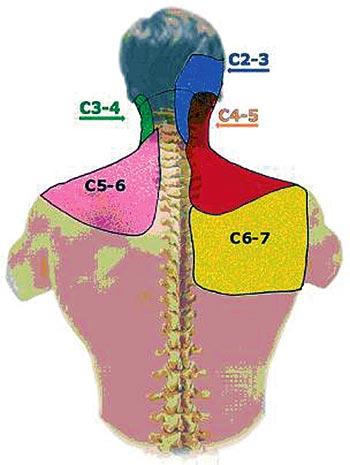 Cervical Facet Medial Branch Block Global Pain Care